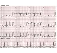 Bild 1: Typische EKG-Wellenform