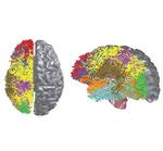 IBM: Cognitive Computing Chips ahmen Fähigkeiten des menschlichen Gehirns nach