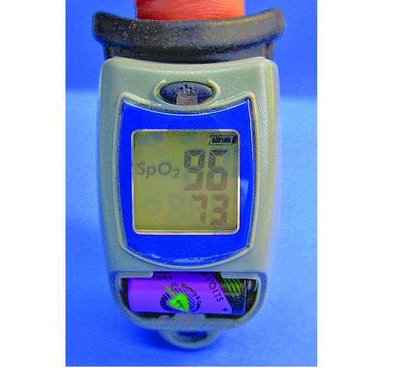 Bild 1: Blutsauerstoffmessgerät mit Lithium-Thionylchlorid-Batterie (Li-SOCl2 )