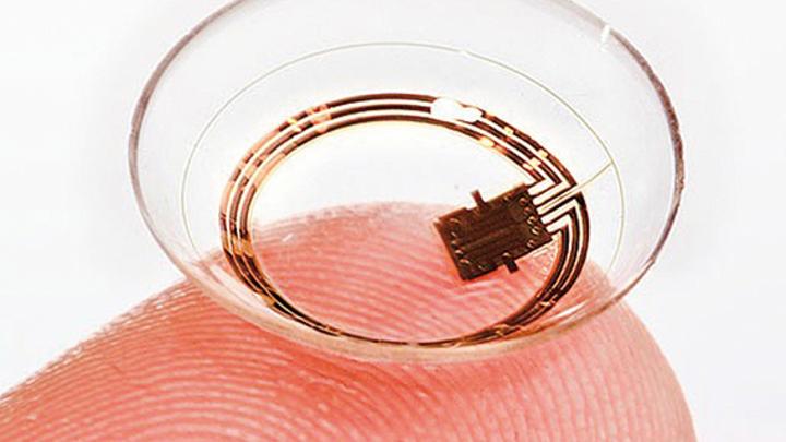 Mit dem Sensor-System von Sensimed lässt sich der Augeninnendruck über 24 Stunden hinweg beobachten.