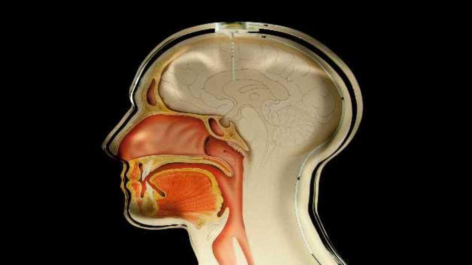 Mit Hilfe des implantierten Überwachungssensors können Mediziner den Hirndruck messen. Sie müssen lediglich ein Handlesegerät an den Kopf des Patienten halten.