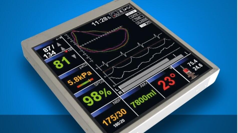 Eine Auflösung von 430 x 430 Pixel hat Data Moduls quadratisches 4,6-Zoll-TFT-Display Batron-Vision+