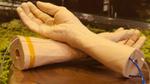 Google entwickelt Armband zur frühzeitigen Krebserkennung