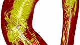 Blutfluss-Verwirbelung