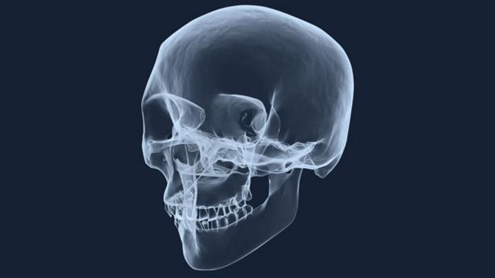 Bisher war das diagnostische Verfahren der Zahnmedizin das Röntgen. Nun wurde ein vielversprechender Schritt in Richtung strahlungsfreie Ersatzmethode gemacht.