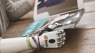 Mensch mit Arm- und Handprothese