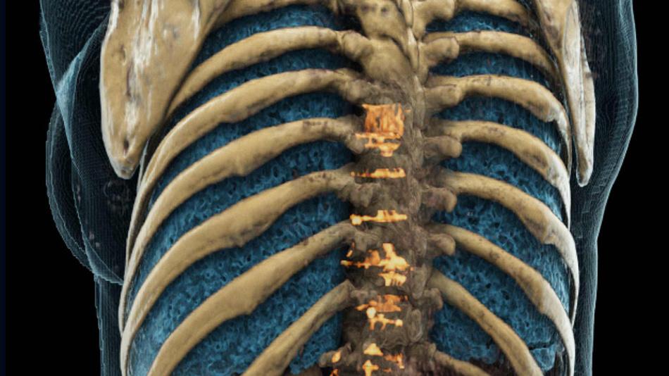 Deep-Learning-Methoden helfen Knochenmetastasen zu entdecken, die in der klinischen Praxis übersehen werden können.