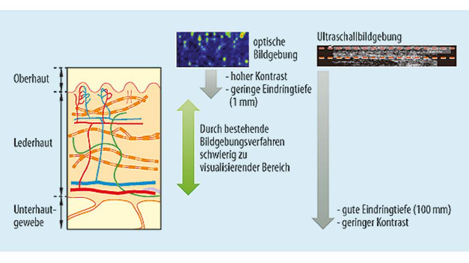 Bild 1. Die Schichtstruktur der Haut und die Eindringtiefen verschiedener Bildgebungsverfahren.