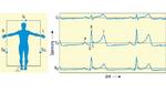 as EKG-Ableitungsschema nach Einthoven (I, II und III) mit typischen Signalen