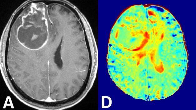 Links die Darstellung eines Hirntumors mit konventioneller, kontrastmittelverstärkter MRT, rechts die Glukose-MRT-Bildgebung bei 7 Tesla