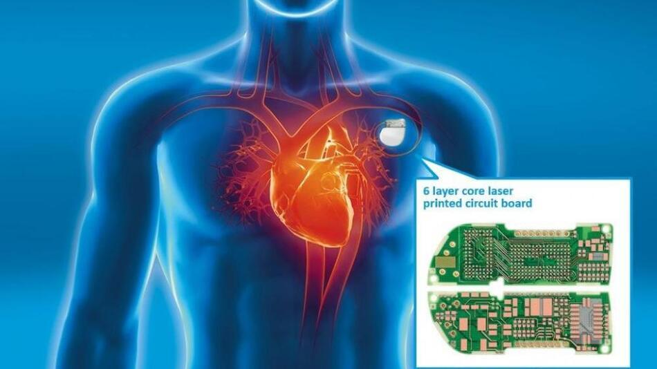 Herzschrittmacher müssen nicht nur sicher sein, sondern dürfen unter der Haut auch nicht auffallen …
