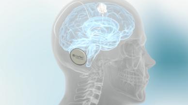 CorTec Brain Interchange: Das Implantat soll die Hirnaktivität im Langzeit-Einsatz messen und stimulieren.