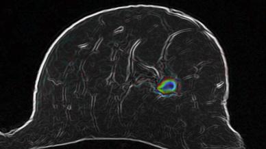 Mit der optimierten diffusionsgewichteten MRT-Bildaufnahmetechnik stellen Ärzte eine verdächtige Läsion in der Brust dar.