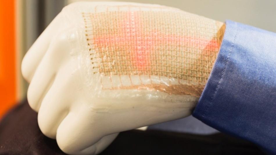Die Eigenschaften gedruckter Elektronik macht die Technologie besonders interessant für Entwicklungen im Gesundheitsbereich