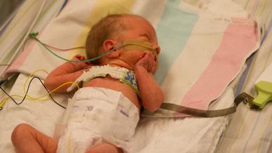 Der Neonatologie-Gürtel in der praktischen Anwendung