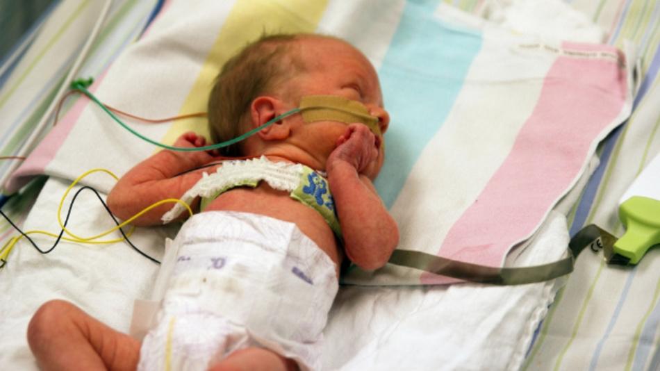 Überwachung der Herz-/Lungenfunktion dank dehnbarer Leiterplatte