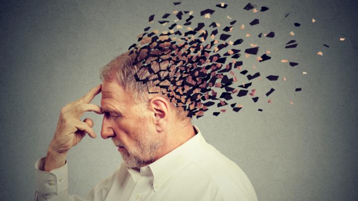 Demenzkrankheit Alzheimer sorgt für schweren Schädigungen am Gehirn