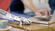 Handprothese »bebionic«