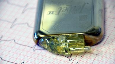 Allein in Deutschland erahlten jedes Jahr rund 100.000 Patienten einen Herzschrittmacher.
