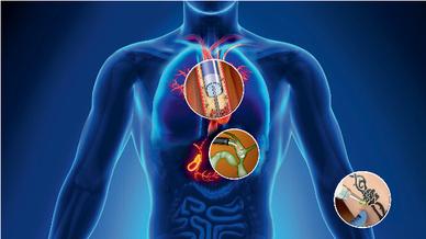 In der Medizin kommt Quarzglas überall dort zum Einsatz, wo Laserlicht flexibel im Körper des Patienten eingesetzt werden soll.
