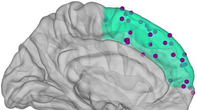 Der mittlere Präfrontalkortex ist grün hervorgehoben. Darauf eingezeichnet sind die Orte, wo die Hirnaktivität gemessen wurde.