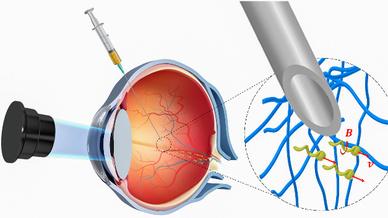 Rutschige Nanoroboter durchdringen das Auge