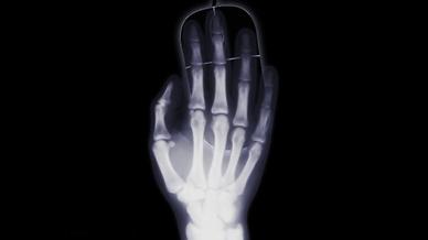 Röntgenaufnahme einer Hand (Symbolbild)