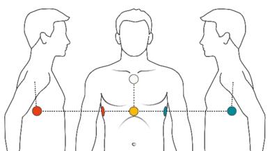 Position Klebeelektroden