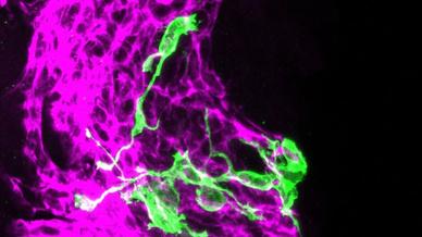 Die Forscher verfolgten die Stammzellentwicklung mit sogenannten Konfetti-Reportern.