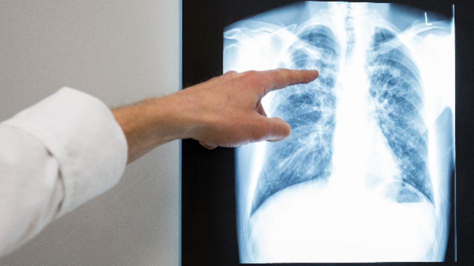 Ein Arzt zeigt auf das Röntgenbild einer Lunge.