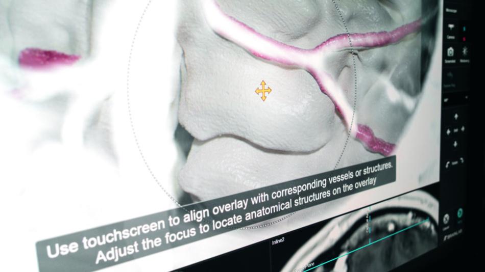 Die Anwendung erlaubt es, die Überlagerung zu verschieben bis eine Übereinstimmung erreicht ist. Somit kann man, wenn sich ein Match zwischen Anatomie und Overlay herstellen lässt, die Genauigkeit auch für Bereiche verbessern, wo sich visuelle keine Übereinstimmung herstellen lässt – zum Beispiel weil man Dinge im MRT erkennen kann, die aber in der Anatomie nicht sichtbar sind.