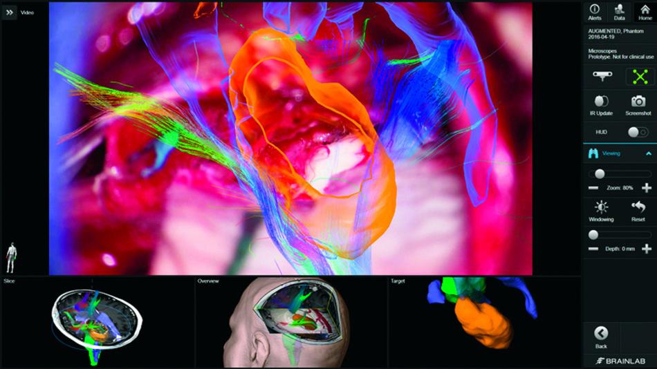 Das Head-up-Display liefert dem Operateur Informationen über die Lage der Gefäße und Fasern im Gehirn. Die Darstellung kann in 2D oder 3D ebenso erfolgen wie in Video-Overlays, die durch das Okular sichtbar sind. Die umfassende Integration des Mikroskops erlaubt dem Chirurgen, mittels Steuertasten oder Fußschalter die Ansichten zu wechseln. So kann er etwa zwischen der realen Ansicht des Operationsgebiets und anatomischen Bilddaten, die vor der OP gewonnen wurden, wählen.