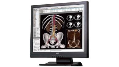 Neuer Farbmonitor zur Bildbetrachtung in der Radiologie