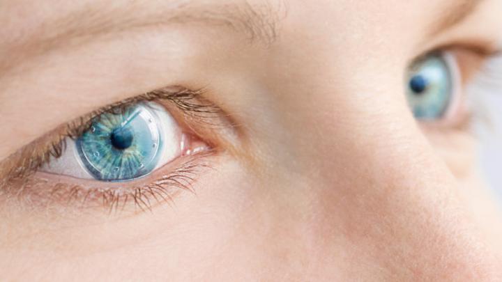 Frau mit Kontaktlinse im Auge