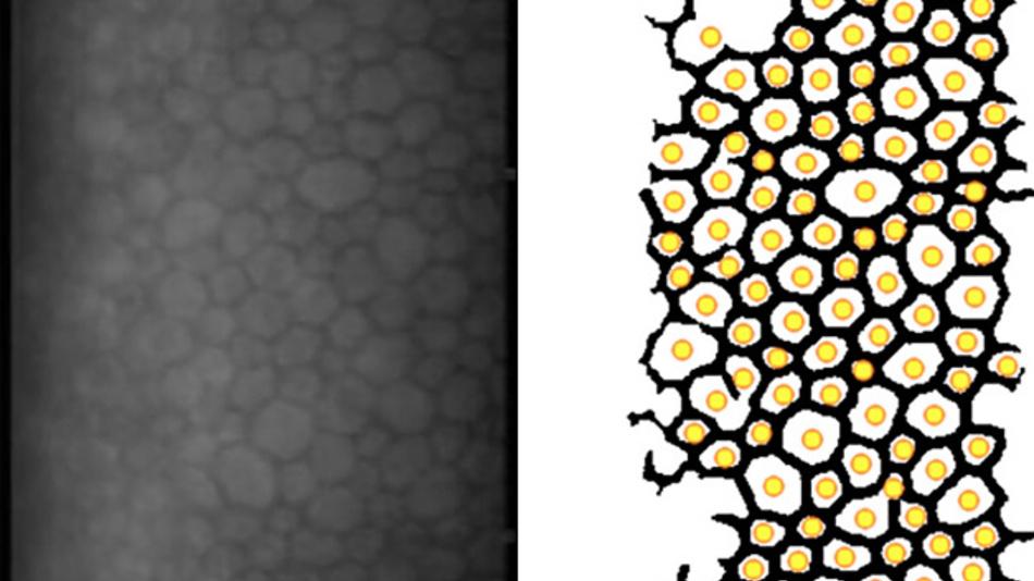 Gleich gut, aber deutlich schneller war die am Universitätsklinikum Freiburg entwickelte Software im Vergleich zu trainierten Augenärzten beim Auszählen von Mikroskop-Bildern.