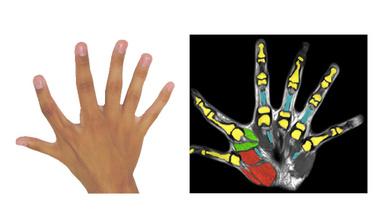 Angeborene Sechsfinger-Hand mit zusätzlichen Muskeln, die den Extra-Finger bewegen.