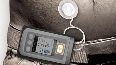 Die Pumpe soll Parkinson-Patienten mehr Autonomie im täglichen Alltag ermöglichen.