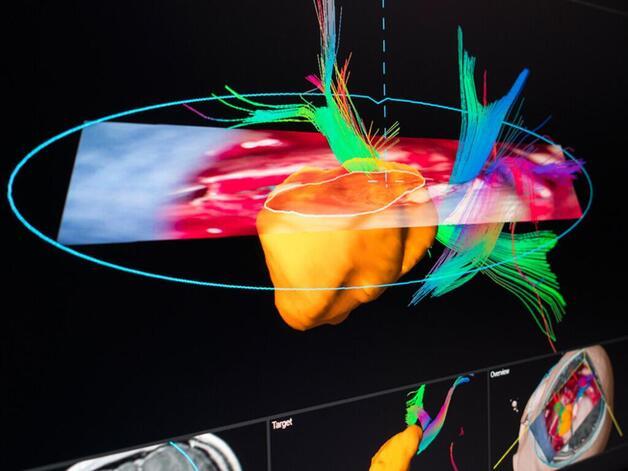 Die Systeme von Brainlab reichen weit über die OP-Planung hinaus. Während des Eingriffes hilft dem Arzt eine Art »Navigationssystem«, die richtigen Schnitte zu setzen und dies möglichst minimal invasiv. Bei Mikroskop-gesteuerten Eingriffen helfen zud