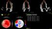 Die Echokardiographie-Plattform ermöglicht die automatisierte Analyse des globalen longitudinalen Strains des linken Ventrikels als wichtigstem Deformationsparameter.