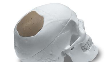 Das Unternehmen entwickelt 3D-Drucker, speziell zugeschnitten auf die Anforderungen regulierter Märkte, wie die Medizintechnik.
