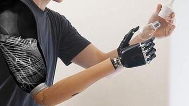 Erstmals wurden Sensoren zur drahtlosen Muskelsignalübertragung nach Nerventransfers implantiert.