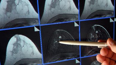 Auf der Bildschirmdarstellung einer Magnetresonanz-(MR)-Mammographie ist ein winziger Tumor in der Brust einer Patientin zu sehen.