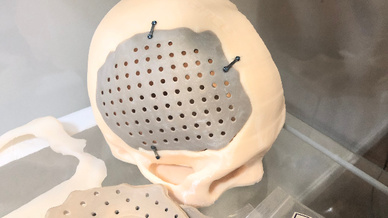 Die im 3D-Druck hergestellten Implantate für die Neuro- und Wirbelsäulenchirurgie ermöglichen eine schnellere Genesung und verringern die Operationsrisiken.