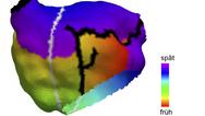 Anatomisches Modell des linken Vorhofs einer 70-jährigen Patientin.