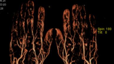CT-Angiografie der Hände