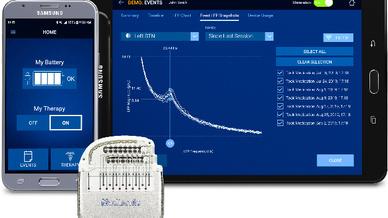 Percept PC Neurostimulator-System: Mit einem konfigurierten Mobilgerät von Samsung können Patienten ihre Behandlung selbst managen.