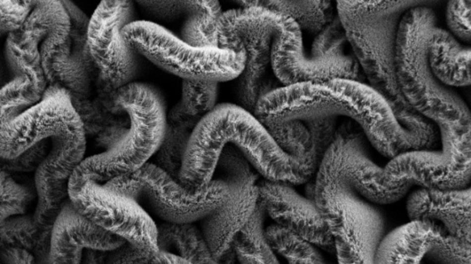Wenn Wälder aus Kohlenstoff-Nanoröhren auf ein in zwei Richtungen vorgespanntes Elastomer-Substrat gelegt werden, entsteht ein Labyrinth aus Spaghetti anstelle von Reihen, was die Leistung des dehnbaren Superkondensators verbessert.