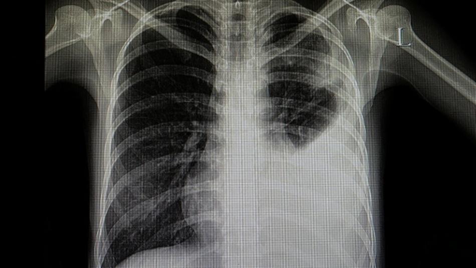 Eine einseitige Veränderung in der Lunge ist ein Hinweis für Bakterien.