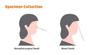 Der Clinitest Covid-19-Antigen-Schnelltest kann auch mit Abstrichen aus dem vorderen Teil der Nase durchgeführt werden.
