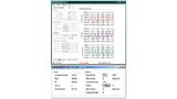 Anzeige der PPG-Kurven des Programms MAX30101EVKit. In dieser Konfiguration sind alle drei LEDs eingeschaltet, sodass auch drei PPG Kurven angezeigt werden